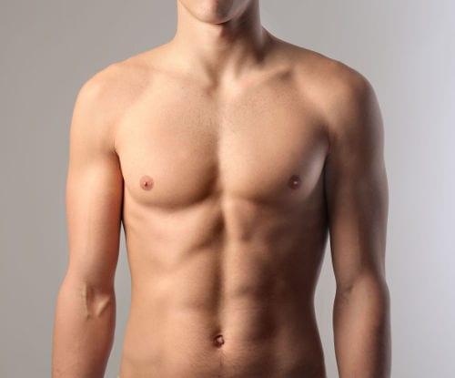 Liposucción en ginecomastia con BODY BANKING