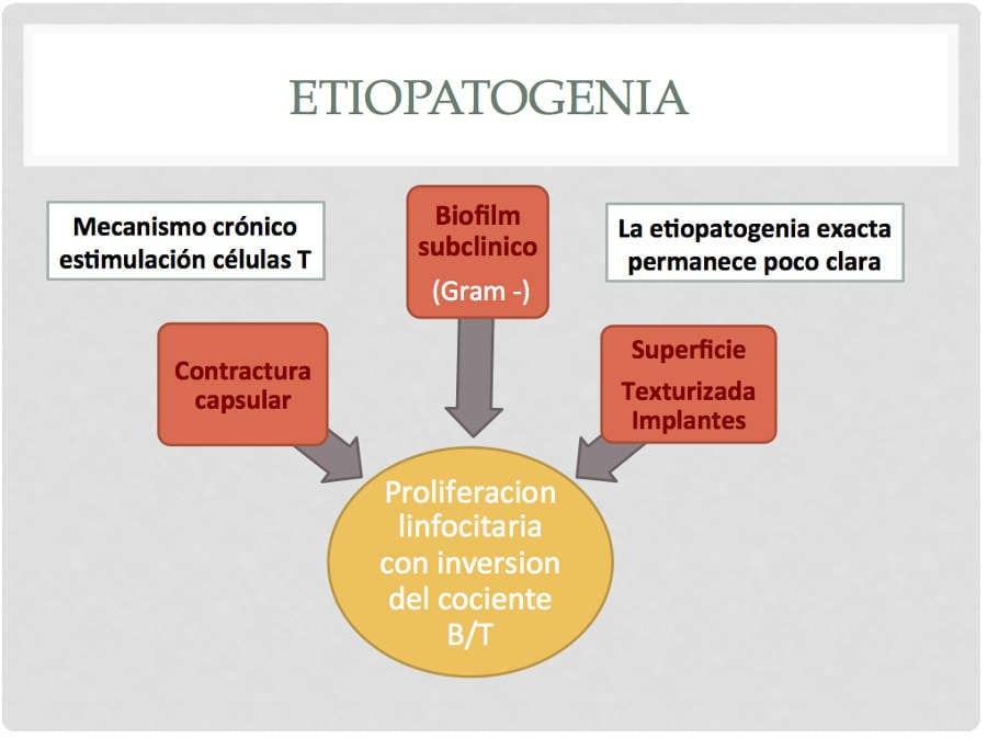 Etiopatogenia del linfoma