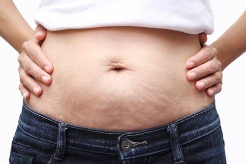 Liposucción en mujeres tras embarazo