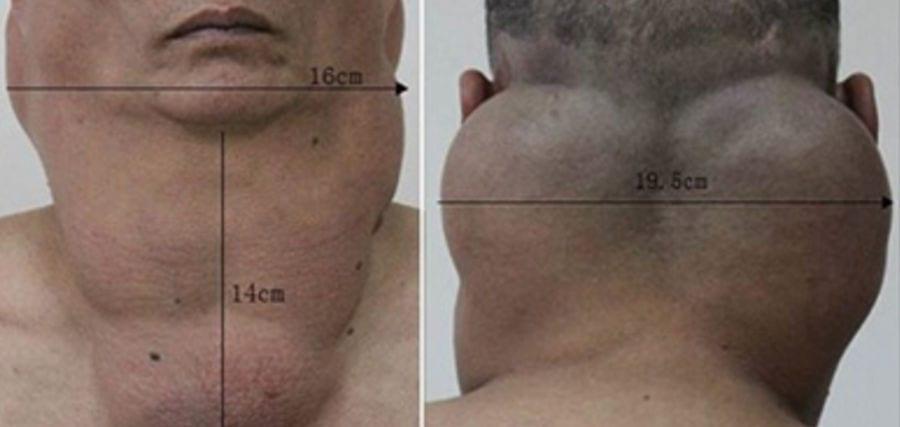 Liposucción de cuello En Valencia Dr. Moltó