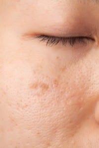las manchas faciales aparecen en muchos casos debido a la exposición solar