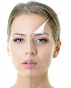 antes y despues de un tratamiento de mesoterapia facial