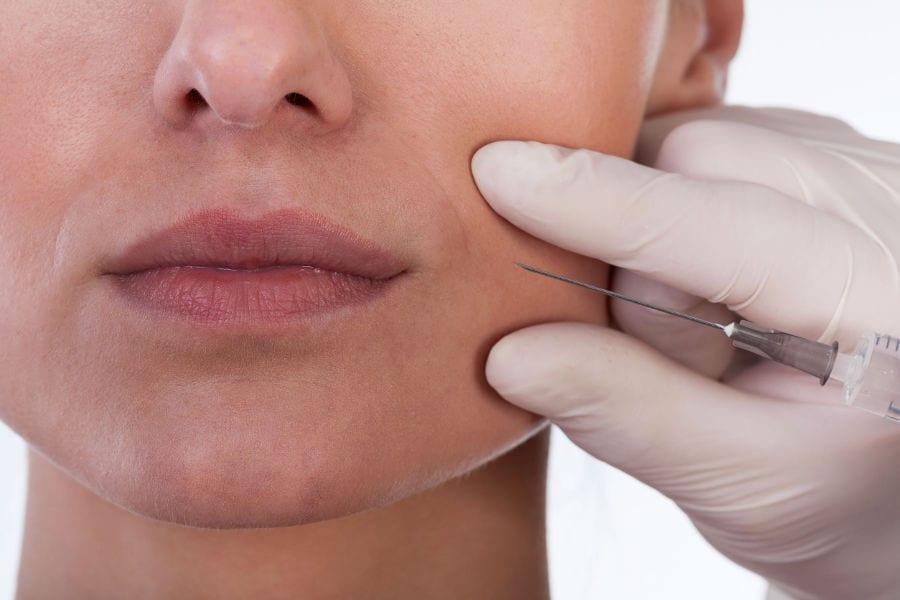Rellenos faciales con ácido hialurónico