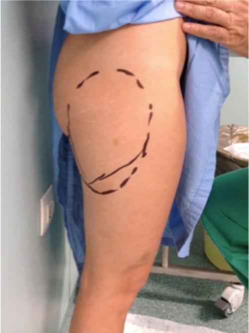 Dibujo para la cirugía en el quirófano