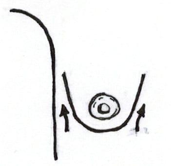 Bolsillo submuscular para pechos tuberosos