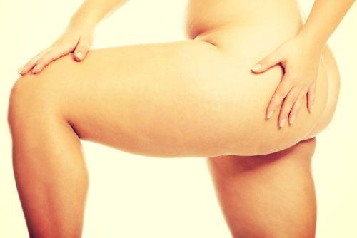 Lifting de muslos: mejora el aspecto de tus muslos