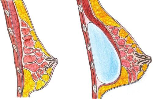 colocación submuscular de la prótesis