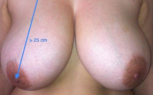 ¿Cuando hacerse una reducción de pechos?