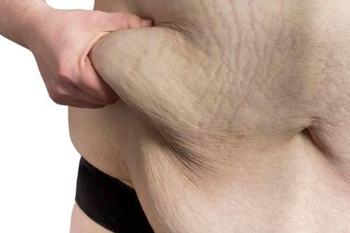 Cirugía estética de abdomen en Valencia Dr. Moltó