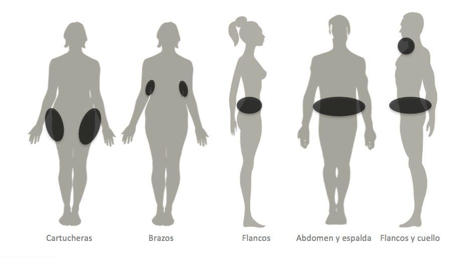 zonas de acumulación de grasa en hombres y mujeres