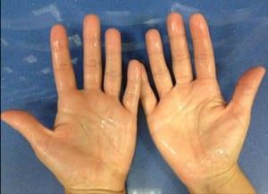 hiperhidrosis valencia Dr. Moltó: exceso de sudoración en las manos
