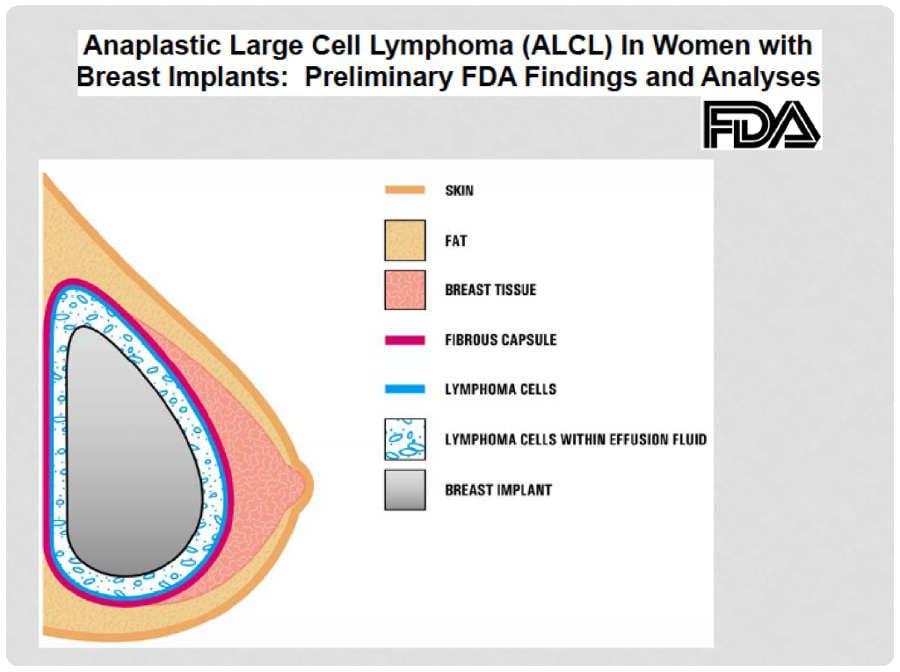 Linfoma por implantes mamarios