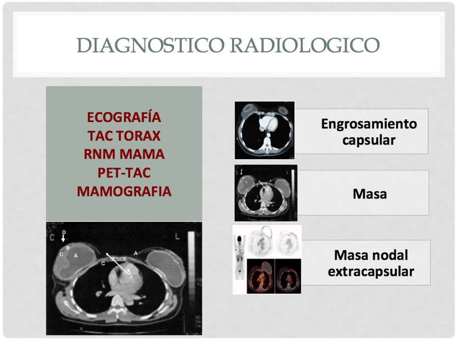 Diagnostico radiologico