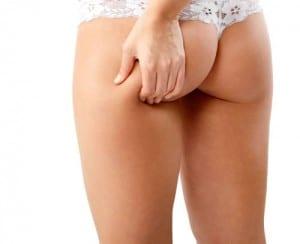 mesoterapia para adelgazar: combate la celulitis y devuelve la firmeza