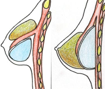 problemas intervencion pechos tuberosos