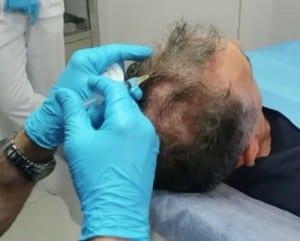 infiltración de plasma rico en plaquetas y vitaminas para revitalizar el cabello