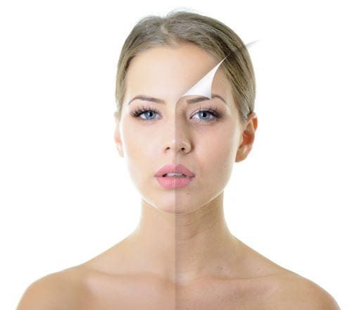 tratamiento con botox Dr. Molto: elimina las arrugas de expresión.