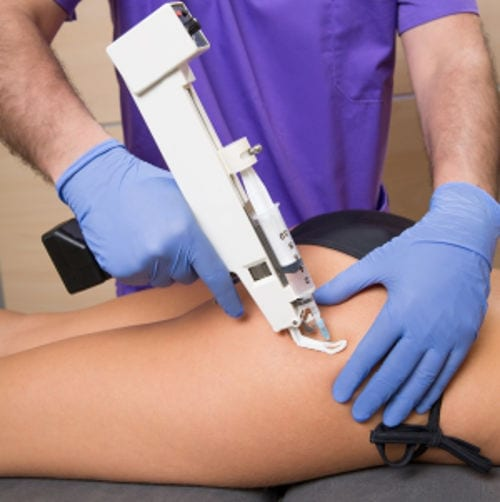 Tratamiento de Carboxiterapia Valencia Dr. Molto