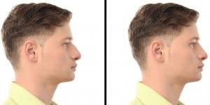 Antes y después de una operacion estética de nariz