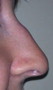 La nariz aguileña