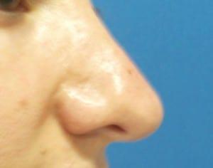 cirugia de nariz secundaria
