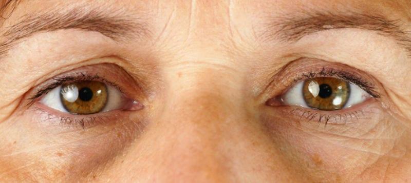 La blefaroplastia elimina el exceso de grasa, piel y arrugas