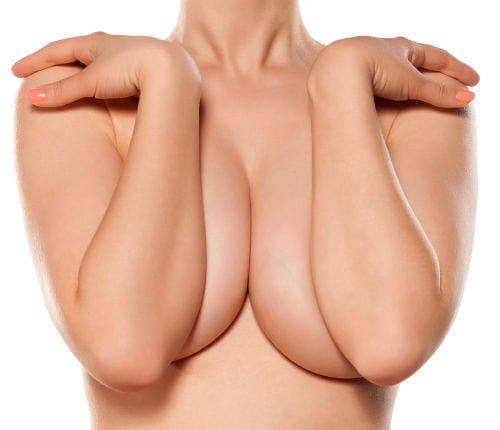 El exceso de pecho es común en las mujeres europeas