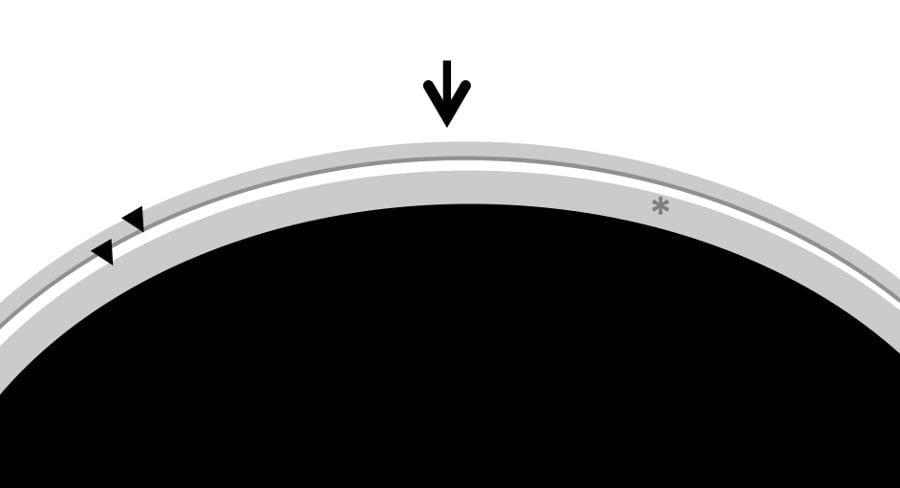 Visión ecográfica de prótesis mamaria
