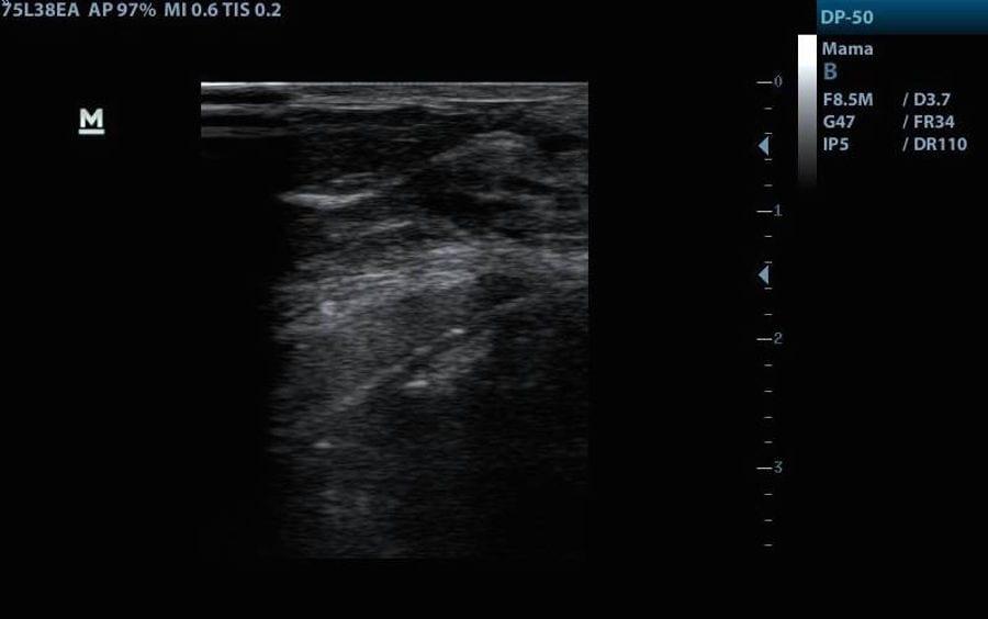 ecografia y protesis de pecho