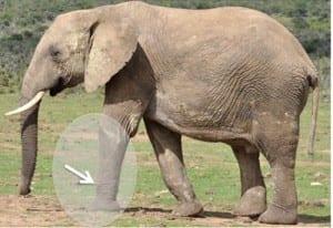 Indicado para pacientes con piernas rectas en forma de pata de elefante