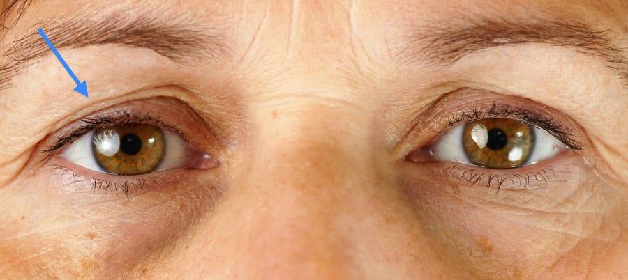 el envejecimiento da lugar a un exceso de piel en los párpados
